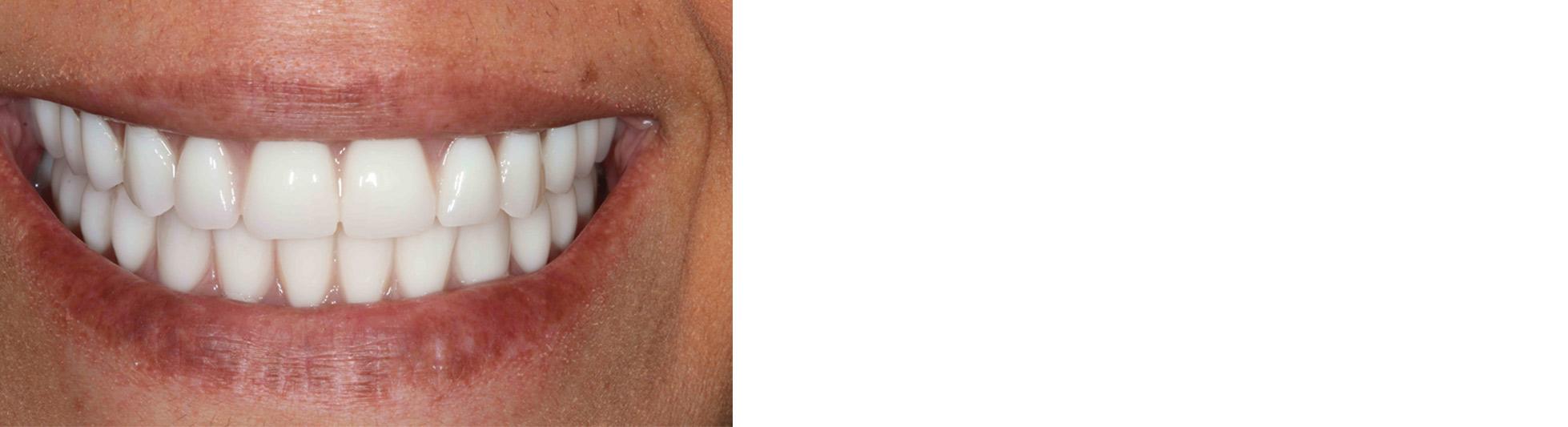 Smile Gallery - Glendora CA, Newport Beach CA CA 91740